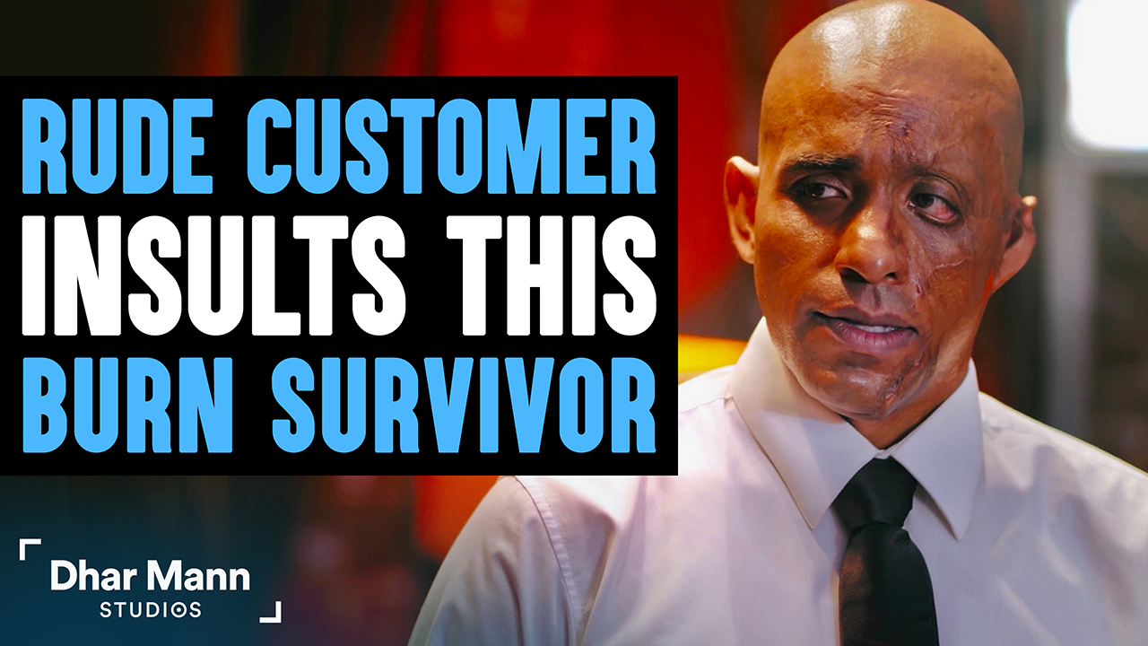 Customer Humiliates Burn Survivor, Then Instantly Regrets His Decision