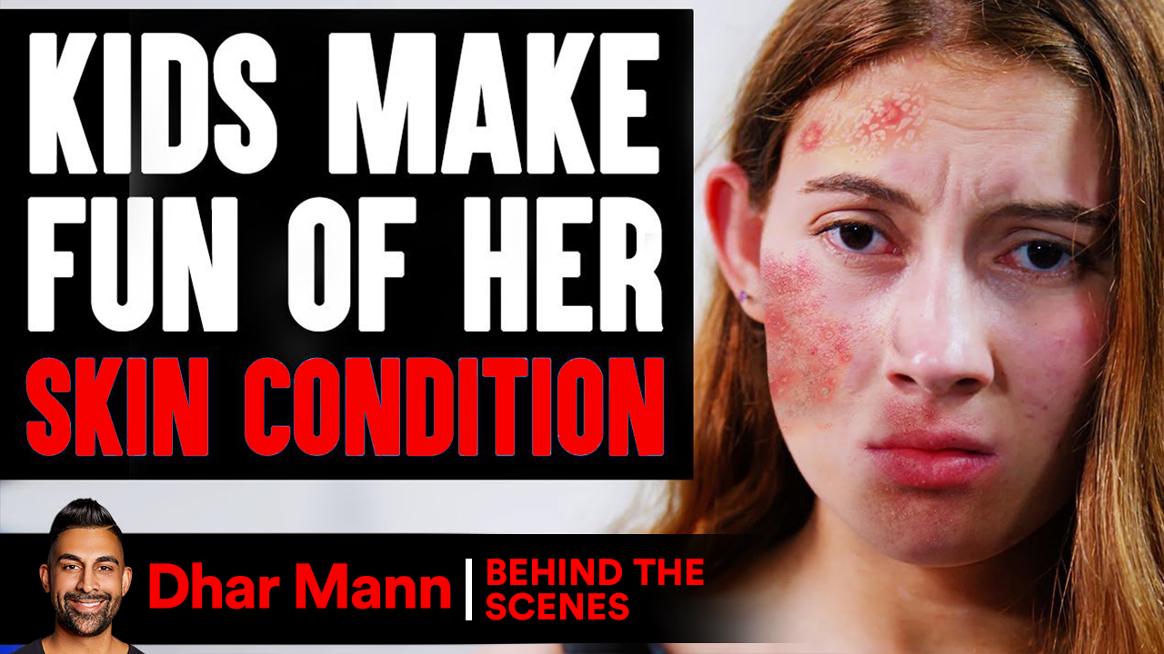 Kids MAKE FUN Of Girl's SKIN CONDITION (Behind-The-Scenes)